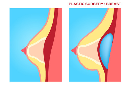 breast implant: Plastic surgery of breast implant