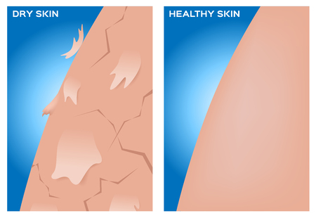 dehydrated: Dry skin and healthy skin texture , vector