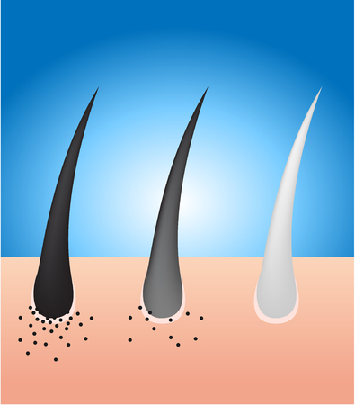 melanin: black hair turn to gray hair ( no melanin ) vector