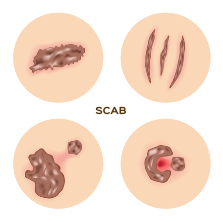 gash: scab skin , wound , bleeding vector