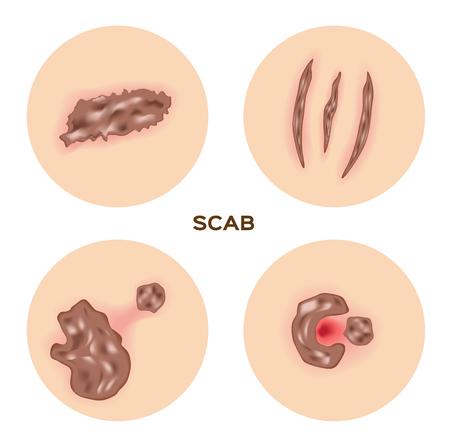 skin injury: scab skin , wound , bleeding vector
