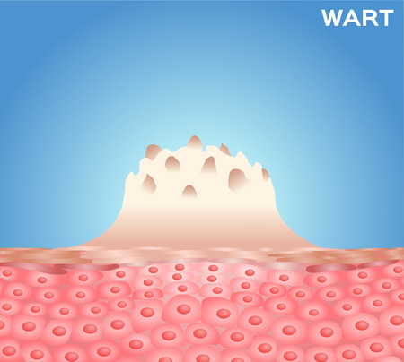 wart: Wart on a persons hand close up , wart vector