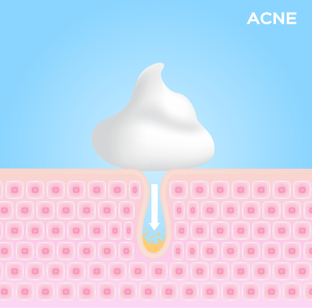 foam cream moose and lotion apply on acne skin and take out the acne . vector graphic Çizim