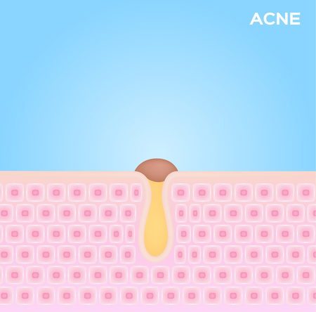 acne in skin vector . black head acne