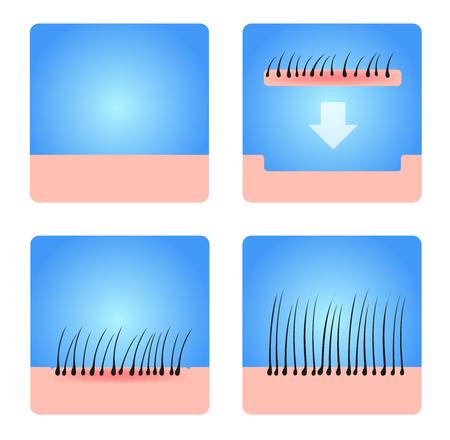 dandruff: hair transplantation vector . black hair Illustration