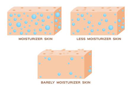 dehydrated: moisturizer in skin . 3 level of moisturizer . vector . anatomy