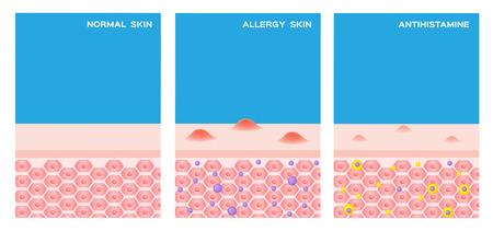 Preview Mentés egy albumba Hasonló képek keresése Share Stock Vektor illusztráció: allergiás bőr vektor. lépése allergiás bőr előtt és után olyan gyógyszert szed,