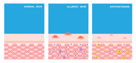 histamine: Preview Save to a lightbox  Find Similar Images  Share Stock Vector Illustration: allergy skin vector . step of allergy skin before and after taking a medicine