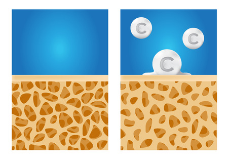 brittle: calcium apply on a bone and make it strong . anatomy