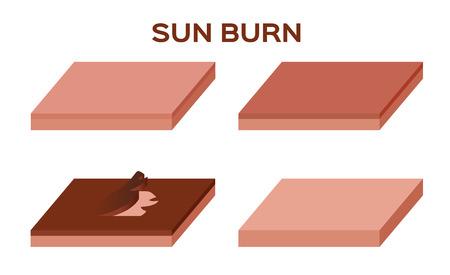 sunburn: step of sunburn from uv until the skin peel off vector . burn skin