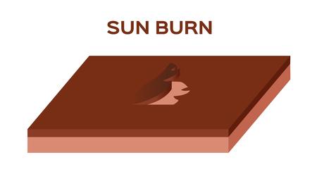 sunburn: sunburn from uv until the skin peel off vector . burn skin