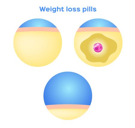 Liposuction , loss weight medicine , fat , diet . vector