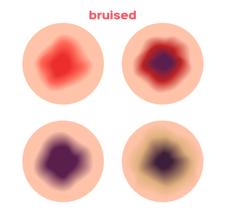 bruised: bruised skin from a little bit bruised to serious bruised . It bleeding in side the skin Illustration