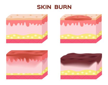 Schritt der Haut brennen. Normale Haut zu schweren Verbrennungen der Haut. Vektor und Symbol Vektorgrafik