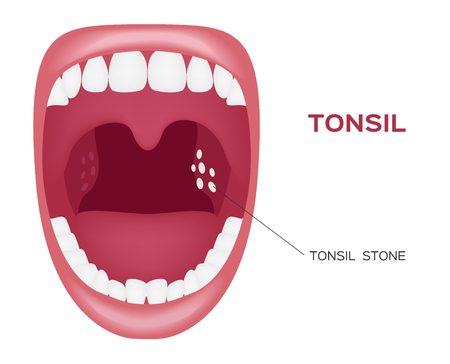 tonsillitis: normal tonsil , tonsil stone in the mouth vector