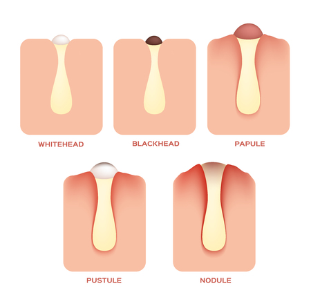 Tipos de acné y las espinillas, las etapas de desarrollo, ilustración vectorial