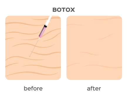 wrinkle: skin filler vector . It can cure the wrinkle