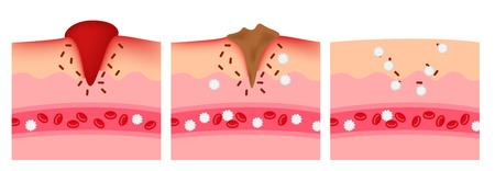 inflame: infographic of how the wound heal by platelet and white blood cell vector