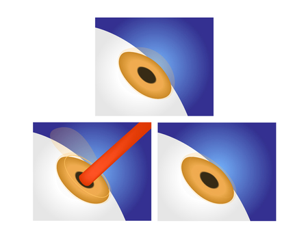 retina: eye lasik icon , logo and vector Illustration
