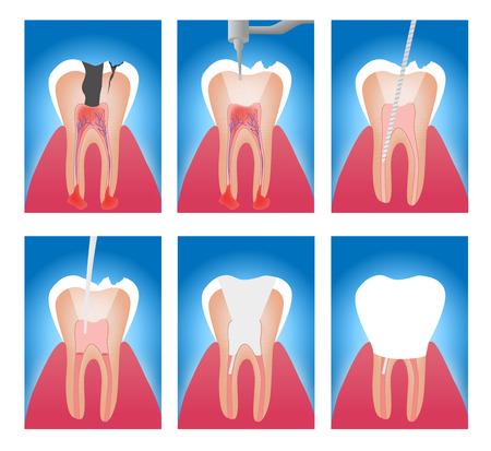 infographic etapy obróbki kanału zęba wektorze Ilustracje wektorowe
