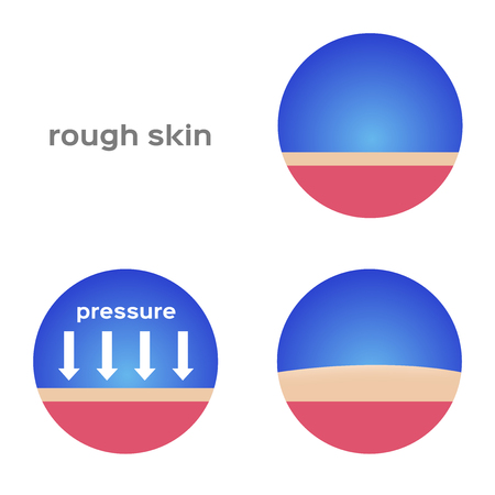amputation: rough skin and callus vector