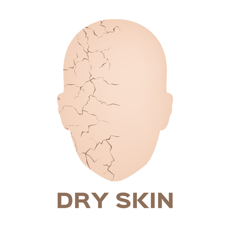 Dry skin face icon and vector