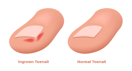 Ingrown Toenail vector