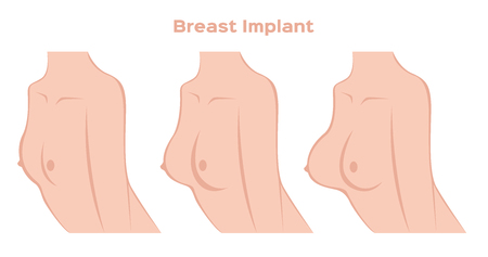 breast implant: breast implant infographic vector Illustration