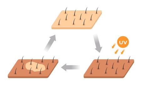 skin life cycle . uv makes skin dark and it peeling off