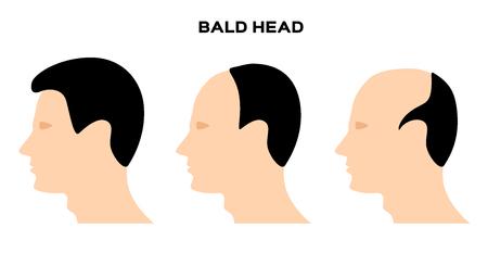 Bald head vector . no hair