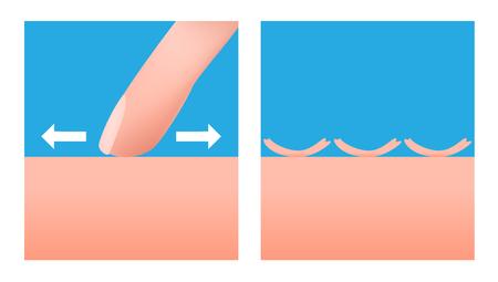 Scurf and skin vector . no moisturizer Illustration