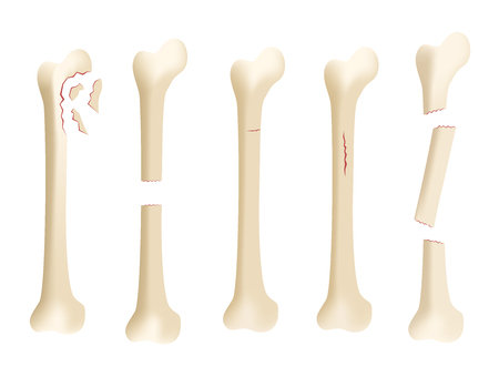 stricture: Crack human bone vector