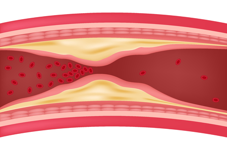 step of Atherosclerosis icon and vector . fat stuck in the blood artery cholesterol Illustration