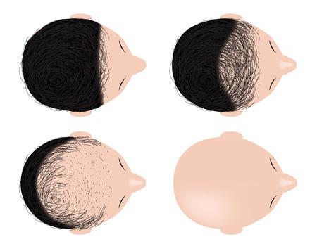 type of baldness , bald head vector . no hair