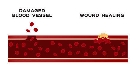 infographic of how blood vessel heal itself Illustration