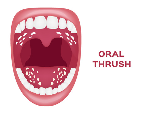 oral thrush vector . white tongue