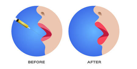 lip and mouth skin filler vector
