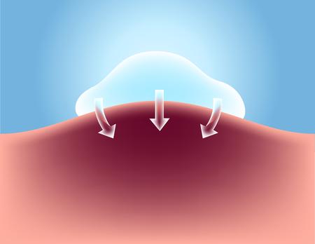 bruising lotion apply on skin vector