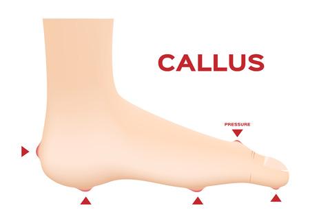 Callus Ischemic and neuropathic Diabetic Foot skin vector