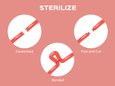 female uterus sterilize vector Illustration