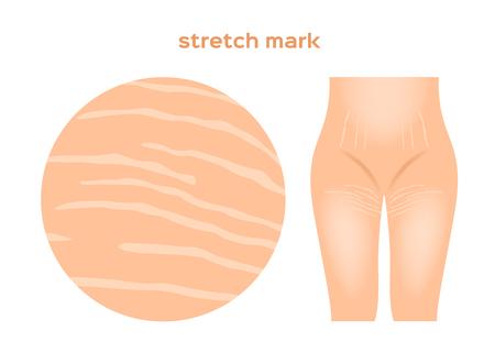 stretch marks . Skin care concept