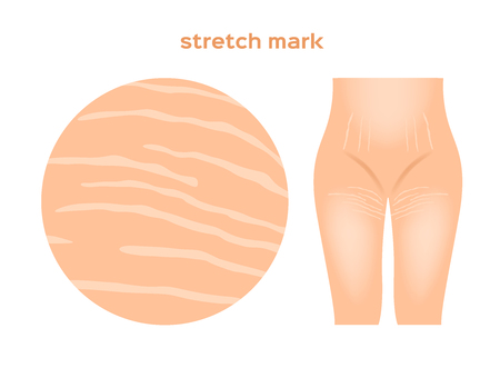 stretch marks . Skin care concept