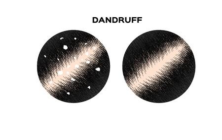 Dandruff on hair vector , closeup on skin