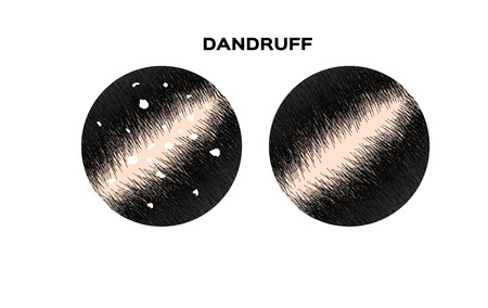 Dandruff on hair vector , closeup on skin