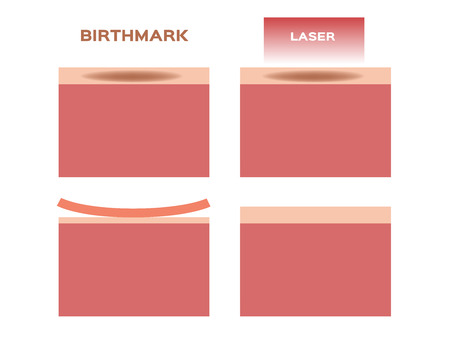 laser remove the birthmark vector
