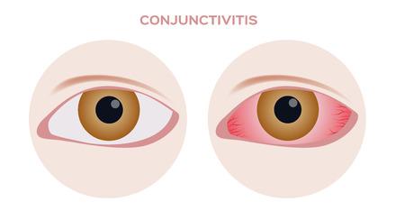 Conjuntivitis. ojo de inflamación rosa