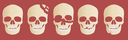 skull bone crack vector  head