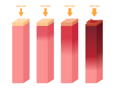 melanin: uv index . The infographic of ultraviolet burn human skin from 4am - 1 pm Illustration
