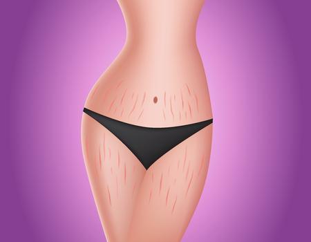 腰や脚にストレッチ マーク。肌ケア概念ベクトル