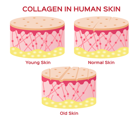 collagen in younger skin and aging vector version Illusztráció